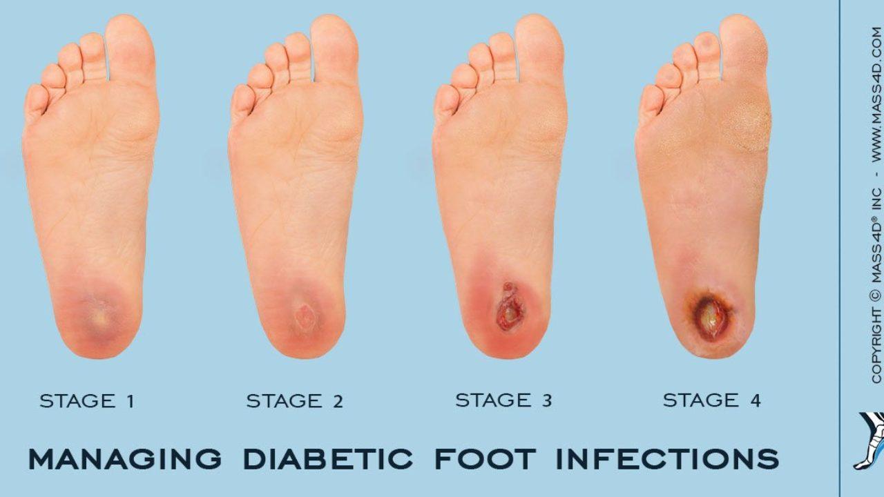 Diabetic Foot Ulcer Causes Symptoms Treatment In Lubbock Tx
